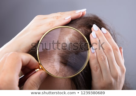 Dermatologist Doctor Examining Woman Hairfall Stock photo © AndreyPopov