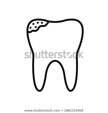 dental caries, toothache, cracked bad teeth, limestone. diseased tooth and oral cavity. on blue back Stock photo © kyryloff