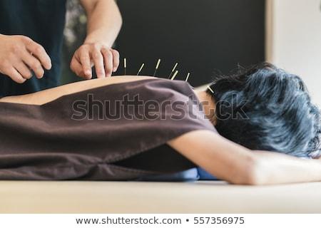 Terapeuta acupuntura tratamiento primer plano spa mujer Foto stock © AndreyPopov