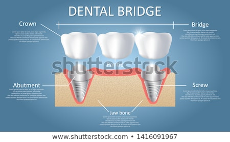 Medical Vector of Fixed Partial Denture Stock photo © bluering