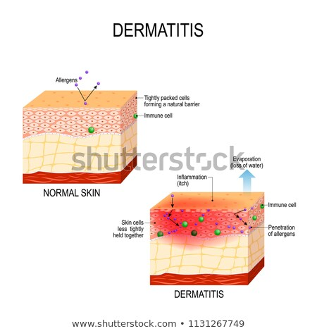 Diagram showing human skin conditions Stock photo © bluering