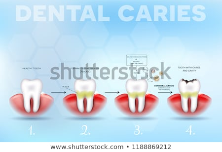 tooth decay formation poster stock photo © tefi