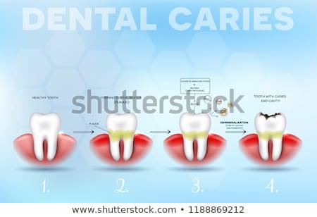 зубов образование плакат стоматологических подробный диаграмма Сток-фото © Tefi