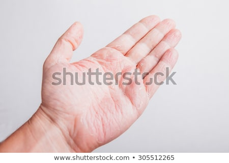 The problem with many people - eczema on hand. Isolated background Stock photo © traza