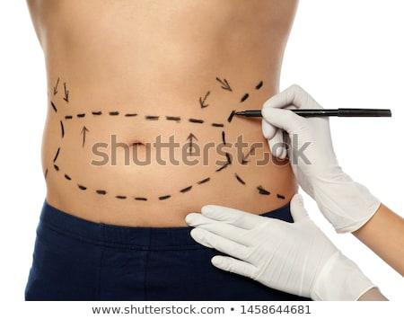 lichaam · vrouw · correctie · cosmetische · chirurgie · aantrekkelijk · kaukasisch - stockfoto © andreypopov