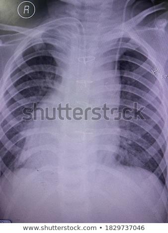 Diagnoza medycznych sprawozdanie czerwony pigułki strzykawki Zdjęcia stock © tashatuvango