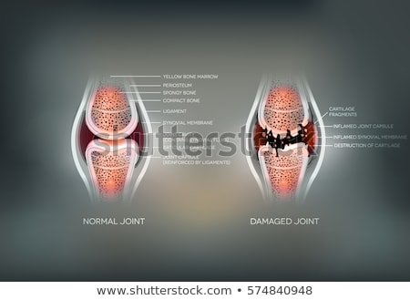 damaged joint and normal joint colorful design on an abstract gr stock photo © tefi