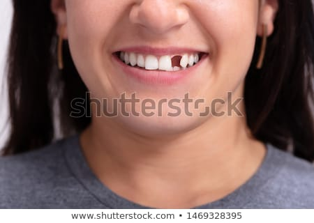 Woman With Missing Tooth Stock photo © AndreyPopov