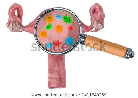 Diagnosis - Syphilis. Medical Concept. 3D Illustration. Stock photo © tashatuvango