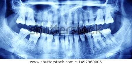 xray of perfect teeth - photo #37