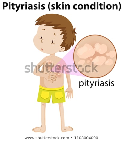 magnified pityriasis on young boy Stock photo © bluering