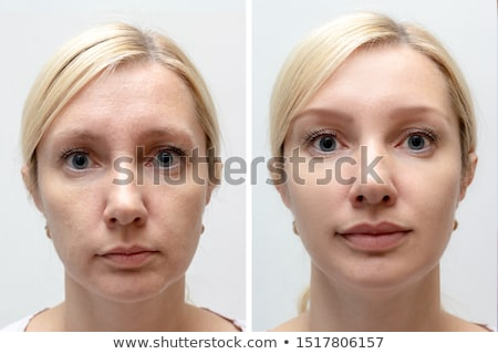 Woman Before And After Lips Augmentation Stock photo © AndreyPopov