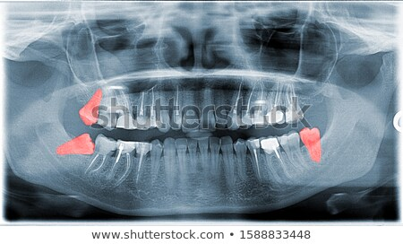 Dental X-ray Picture Of Jaw With Wishdom Teeth Stock photo © AndreyPopov