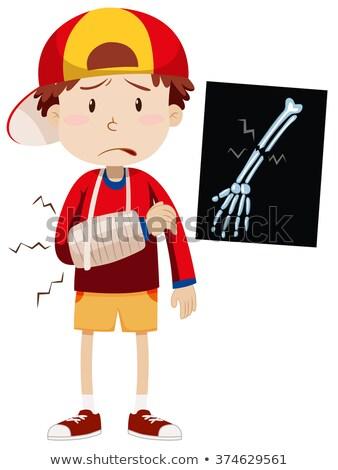 Infeliz menino quebrado braço ferido Foto stock © lovleah