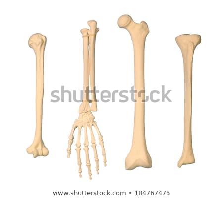 骨粗しょう症 · 骨 · 健康 · 実例 · 白 · 医療 - ストックフォト © tefi