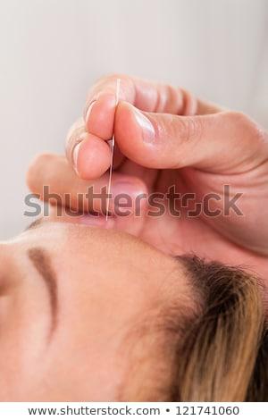 kobieta · akupunktura · terapii · salon · widok · z · boku · młoda · kobieta - zdjęcia stock © andreypopov