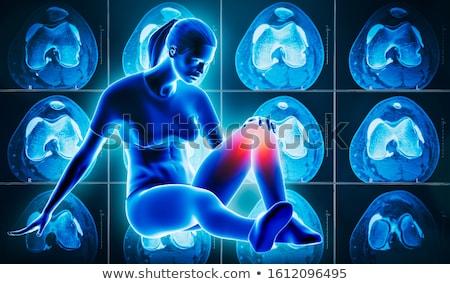 diagnosis   sprain medical concept 3d render stock photo © tashatuvango