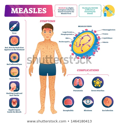 Measles Disease Diagnosis Stock photo © Lightsource