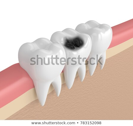 Molar Decay Stock photo © blamb