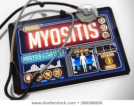 myositis on the display of medical tablet stock photo © tashatuvango