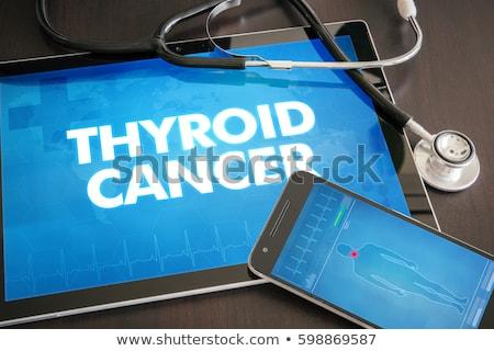 thyroid cancer on the display of medical tablet stock photo © tashatuvango