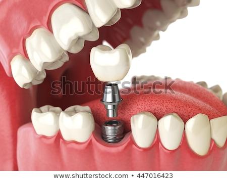 Fogászati implantátum korona illusztráció mutat száj Stock fotó © bluering
