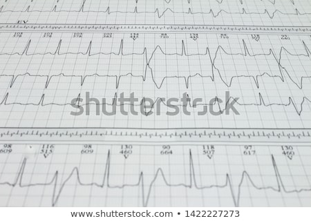identification of heart arrhythmia Stock photo © alexaldo