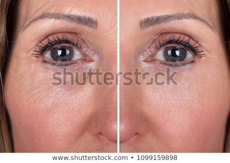 Eyebrows Before And After Lifting Stock photo © AndreyPopov