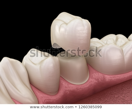 Tooth In Crown stock photo © adamson