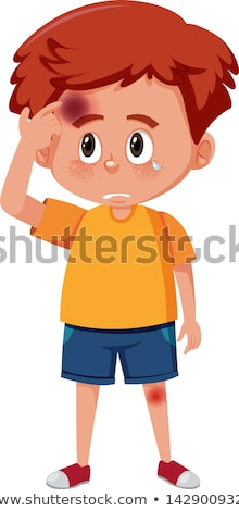 A Boy Having Bruise on Face Stock photo © bluering