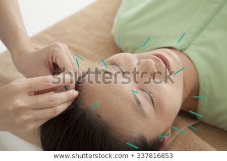 Személy akupunktúra tű arc nő közelkép Stock fotó © AndreyPopov