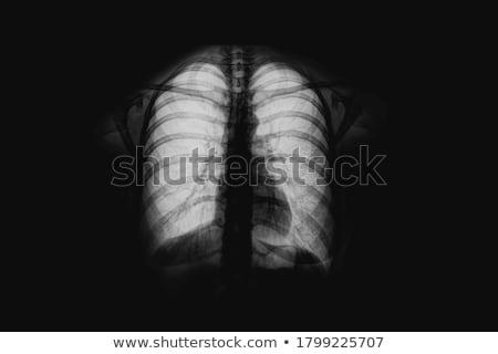 röntgen · kép · nyak · gerincoszlop · izolált · fekete - stock fotó © restyler