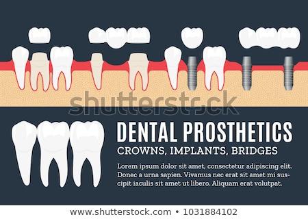 Dental abstrato localização beleza solução dentes Foto stock © RAStudio