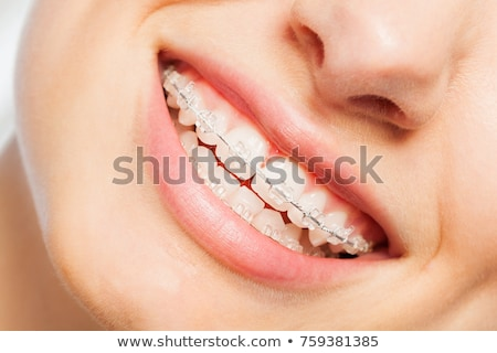 young woman with orthodontic braces smiling Stock photo © diego_cervo