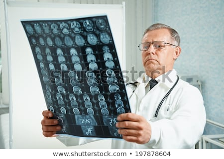male doctor looking at x ray picture of brain stock photo © deandrobot