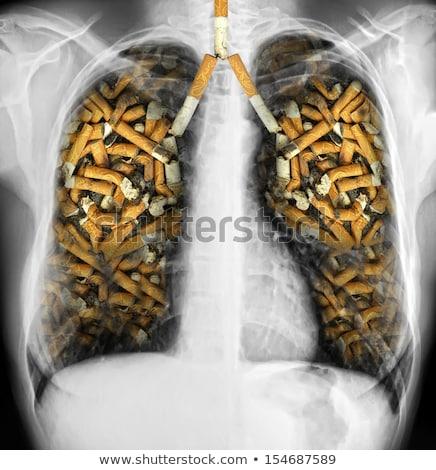 fumador · saúde · efeitos · cigarro · ardente · buraco - foto stock © lightsource