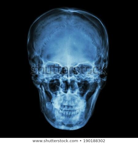 Foto stock: Cara · crânio · raio · x · imagem · azul