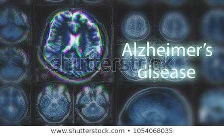 болезнь · человека · голову · бумаги · отсутствующий - Сток-фото © lightsource