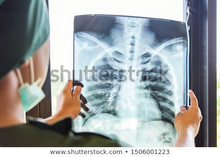 Nurse examining X-ray report Stock photo © wavebreak_media