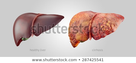 Normal healthy liver and Liver with Cirrhosis  Stock photo © Tefi
