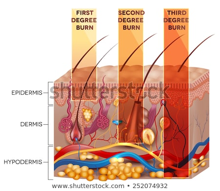 Stock photo: Skin burn classification. First, second and third degree skin bu