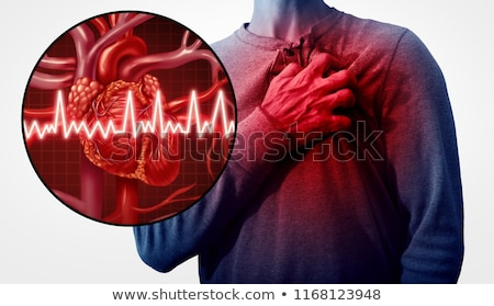 Artery Disease Symptoms Diagram Stock photo © Lightsource