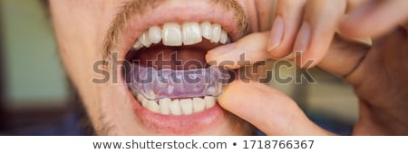 Man placing a bite plate in his mouth to protect his teeth at night from grinding caused by bruxism Stock photo © galitskaya