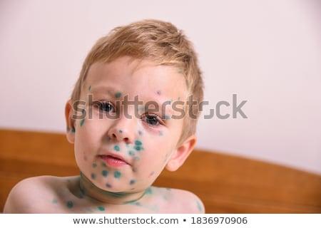Portré kisgyerek fiú gyermek gyógyszer alsónemű Stock fotó © IS2