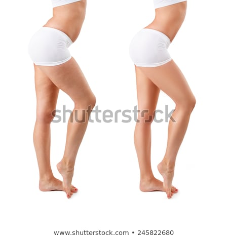 Person's Leg Before And After Cellulite Treatment Stock photo © AndreyPopov