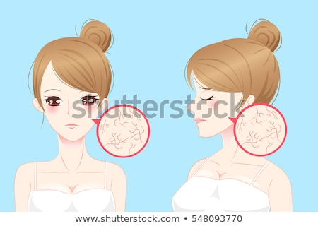 Illustration of a woman with rough skin  Stock photo © Blue_daemon