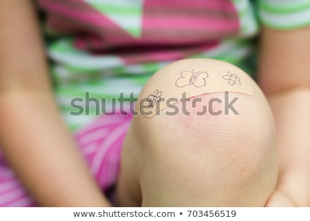 scratches on the knee Stock photo © Kayco
