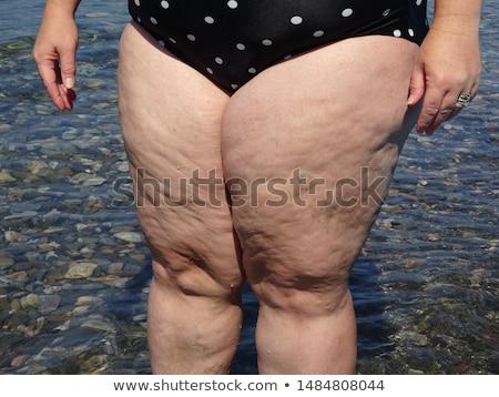 セルライト 肥満 皮膚 女性 フィットネス 健康 ストックフォト © vlad_star