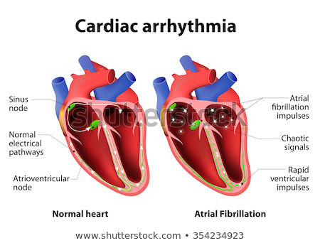 Arrhythmia of a Heart Stock photo © alexaldo