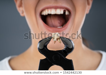 woman holding broken denture using pincers stock photo © andreypopov